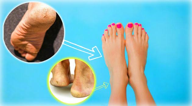 Podóloga indica substituto ideal para lixa de pé: deixa macio sem engrossar depois