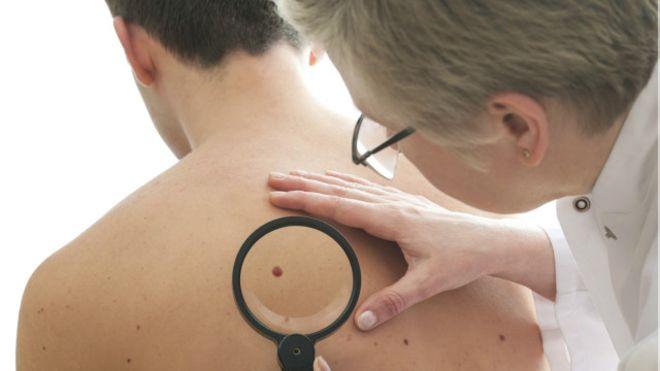 Câncer de pele pode ser confundido com lesões comuns ou psoríase
