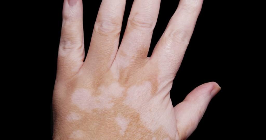 Por que o limão mancha a pele?